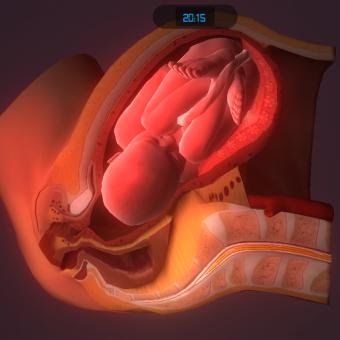 Simulation d'accouchement
